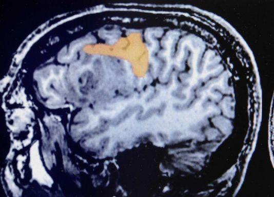 Métastases cérébrales et leptoméningées des cancers solides