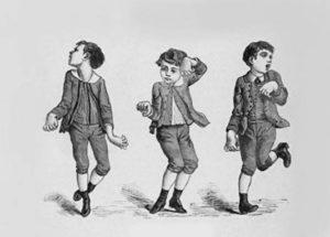 Mouvements anormaux (dystonie, athétose, chorée, ballisme) (Suite)