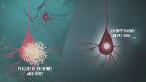 Neuropathies amyloïdes