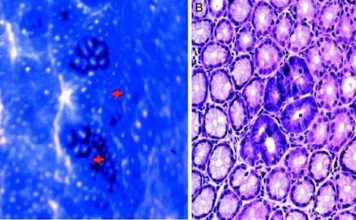 Neuropathies néoplasiques et paranéoplasiques au cours des tumeurs solides