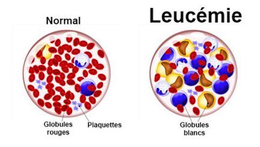 Neuropathies périphériques au cours des dysglobulinémies