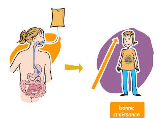Nutrition Enterale