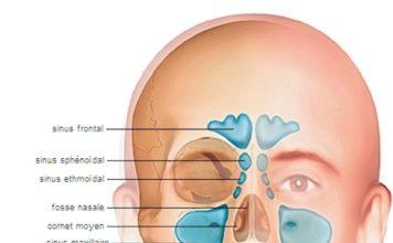Explorations physiques et fonctionnelles des fosses nasales (Suite)