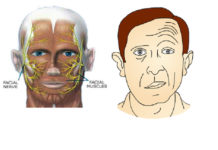 Paralysies faciales (Suite)