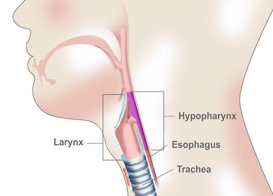 Cancer de l'hypopharynx