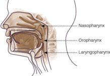 Cancer du rhinopharynx