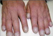 Ostéoarthropathie hypertrophiante