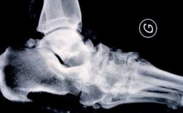 Ostéoarthropathies nerveuses