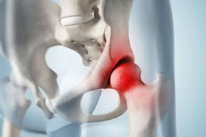 Ostéochondrite primitive de hanche