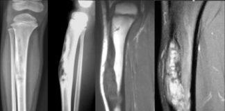Ostéofibrodysplasie de Campanacci