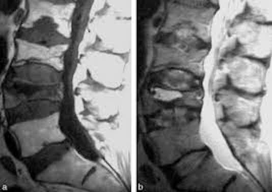 Ostéopathies endocriniennes (en dehors de l'hyperparathyroïdie)