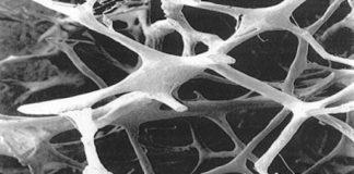 Ostéoporoses (Suite)