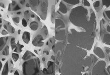Ostéoporoses