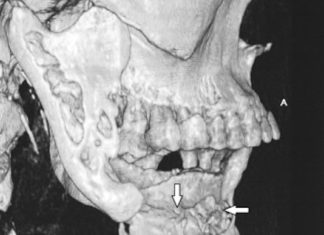 Ostéoradionécroses