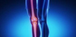 Ostéosarcomes de basse malignité