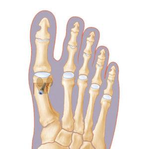 Ostéotomies phalangiennes et métatarsiennes