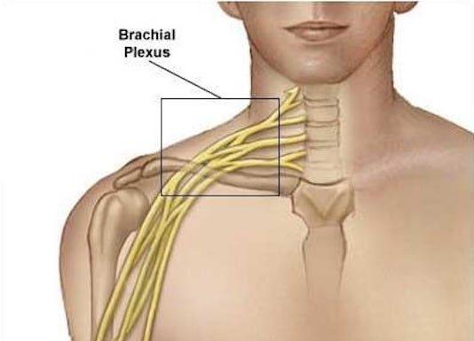 Paralysie obstétricale du plexus brachial