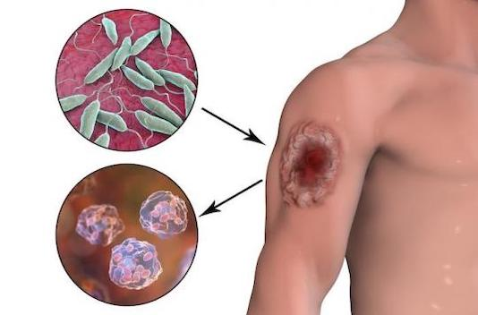 Parasitoses cutanées (en dehors des ectoparasitoses) et manifestations cutanées des parasitoses extracutanées