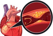 Pathogenèse de l'athérosclérose