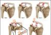 Pathologie acromioclaviculaire chronique