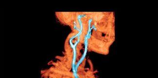 Principales échelles en pathologie neurovasculaire