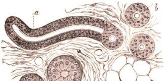 Pathologie non tumorale des glandes sudorales