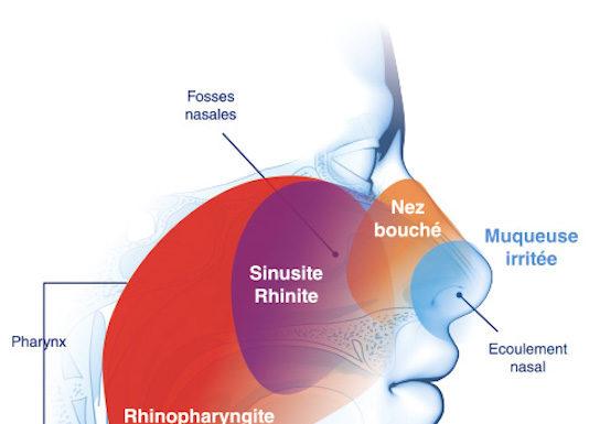 Pathologie de la sphère ORL au cours du syndrome d'immunodéficience acquise : apport de l'imagerie