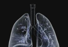 Bronchites aiguës, pneumopathies infectieuses aiguës de l'enfant