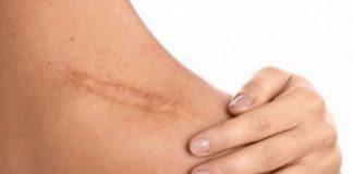 Physiologie de la cicatrisation cutanée