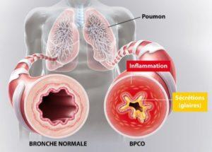 Bronchite chronique obstructive, emphysème