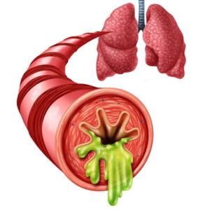 Bronchites aigues, pneumopathies infectieuses aigues