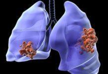 Cancers bronchiques à petites cellules