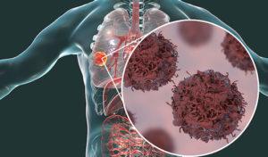 Cancers épidermoïdes et adénocarcinomes bronchiques