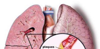 Embolie pulmonaire