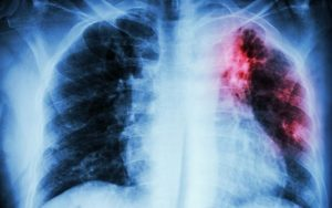 Tuberculose pulmonaire et primo-infection tuberculeuse