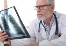 Pneumopathies nosocomiales chez le patient non immunodéprimé