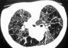 Poumon multikystique et kystes pulmonaires multiples