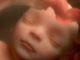 Prématurité et hypotrophie à la naissance