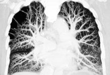 Préservation ischémique du poumon