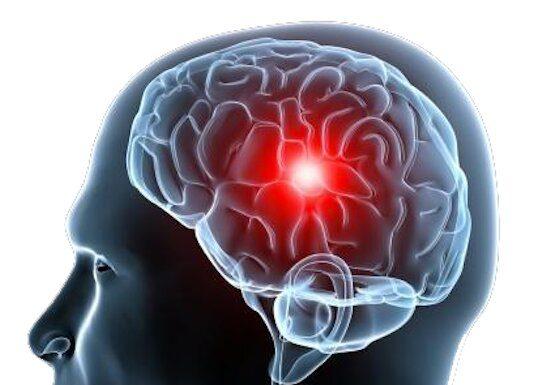 Prévention des accidents vasculaires cérébraux (Suite)