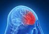 Prévention des accidents vasculaires cérébraux