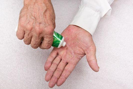 Psoriasis : traitement