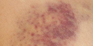 Purpura rhumatoïde de l'enfant et de l'adulte