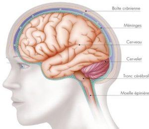 Radiothérapie des tumeurs cérébrales primitives de l'adulte