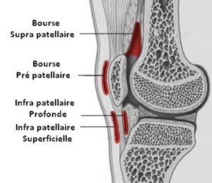 Ruptures de l'appareil extenseur du genou