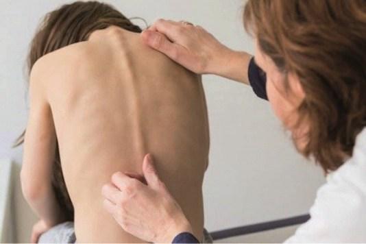 Scoliose idiopathique de l'adulte (Suite)
