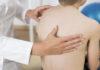 Scoliose idiopathique de l'adulte