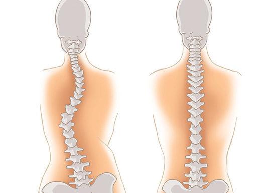Scoliose idiopathique. Stratégie diagnostique, physiopathologie et analyse de la déformation (Suite)
