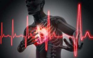 Soins IDE aux patients atteints d'infarctus du myocarde