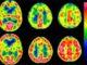 Principaux aspects techniques et pratiques de la SPECT cérébrale. Résultats et indications (Suite)